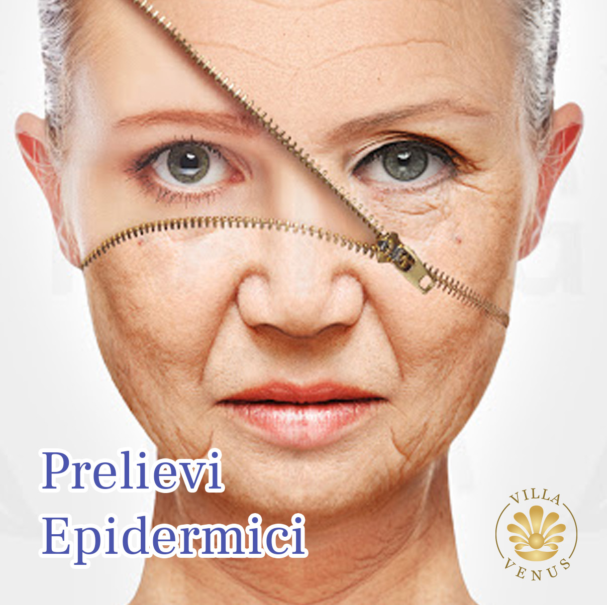 Prelievi Epidermici